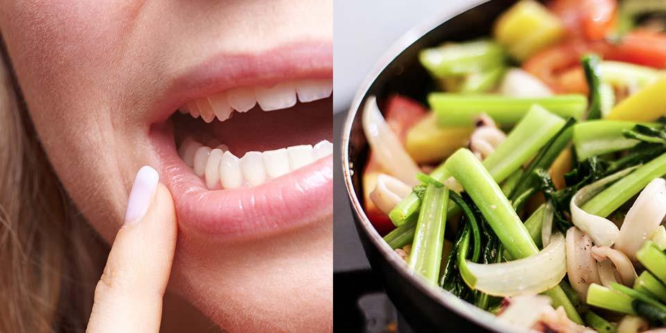 口内炎予防には手作り料理がカギ